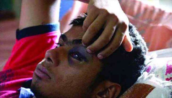 Trade bodies to meet treatment expenses of pellet victims