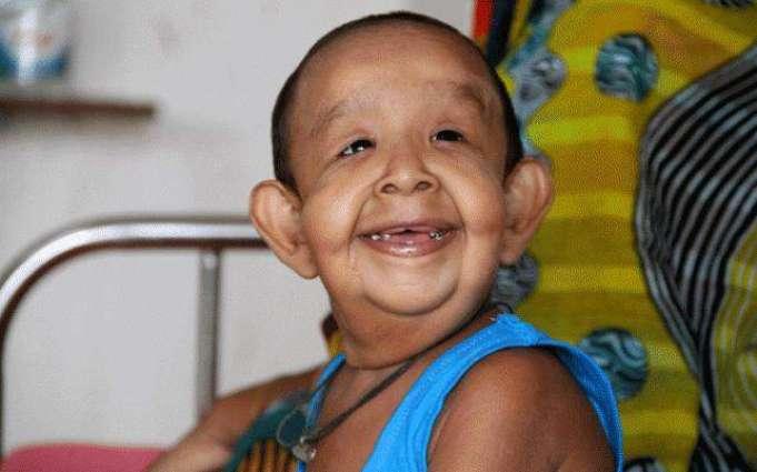 Bangladeshi boy with 'old man' illness baffles doctors