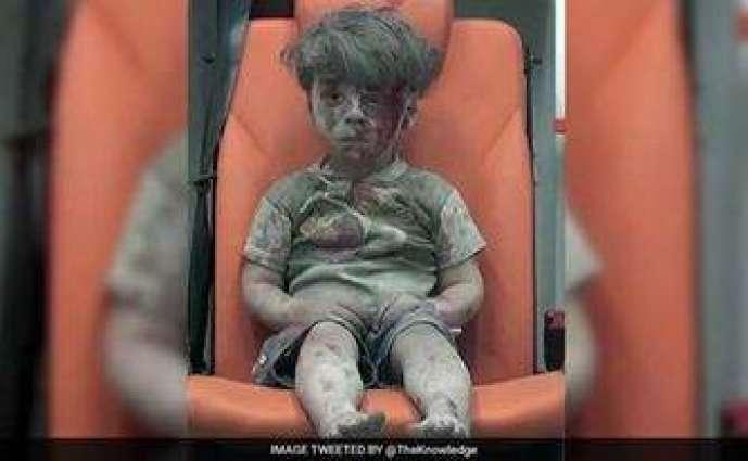 امریکہ دا سوشل میڈیا تے 4  سالہ شامی زخمی بال دی قا  بل رحم حالت آلی تصویر تے ودھ سارے صدمے دا اظہار  تصویر شا م اچ جنگ دیاں تباہ کاریاں اتے درپیش صورتحال دی حقیقت کوں ظاہر کریندی ہے ، ترجمان محکمہ خارجہ