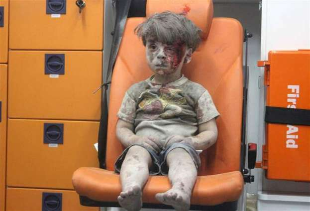 A picture of four years old Syrian wounded boy wounds hearts of people