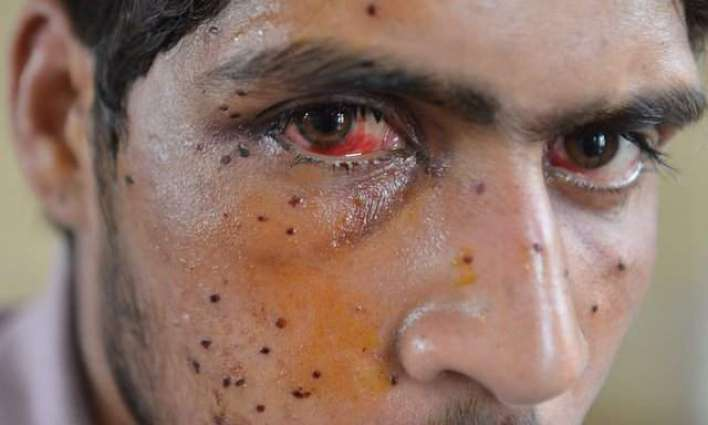 India's crackdown in Kashmir: is this the world's first mass