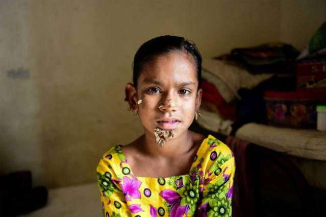 Bangladesh treats first case of 'tree girl' syndrome