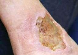 Alarm over flesh-eating ulcer cases in Australia