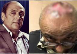 Pakistani Actor Sajid Hasan's hair transplant surgery gone horribly wrong