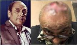 Pakistani Actor Sajid Hasan's hair transplant surgery gone horribly wrong
