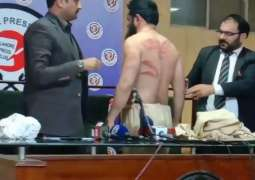 Suspects who tortured Maulana Nasir Madni arrested