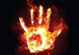 Man set ablaze by his wife in Sialkot battles for life
