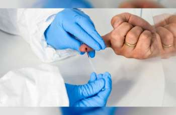 Worldwide coronavirus cases cross 30.02 million, death toll at 941,817